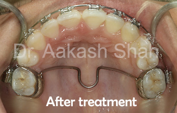Aakash orthodontics Latest Cases